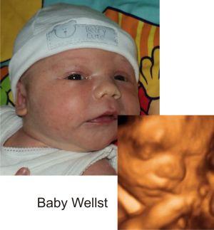 http://preciouspreviews.com.au/wp-content/uploads/2016/08/Baby-Wells9.jpg