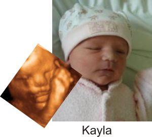 http://preciouspreviews.com.au/wp-content/uploads/2016/08/Kayla33.jpg