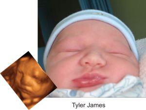 http://preciouspreviews.com.au/wp-content/uploads/2016/08/Tyler-James62.jpg